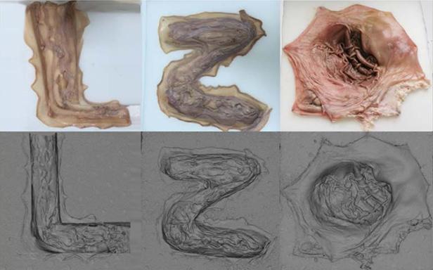 scanned organs